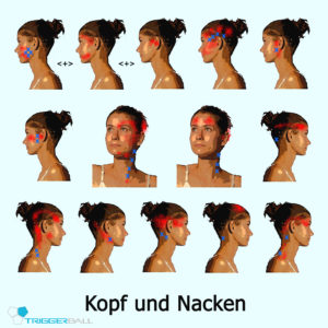Nackenverspannung udn Kopfschmerzpunkte